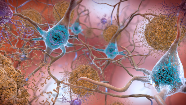 Beta-amyloid plaques and tau in the brain.