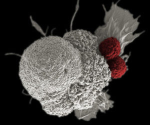Electron micrograph of two cytotoxic T cells (red) attacking an oral squamous cancer cell (white), part of a natural immune response.