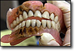 Larry Coleman's old denture was stained by the tobacco he chews every day.